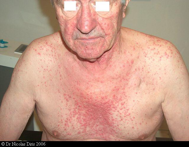 papulose lymphomatoïde type a